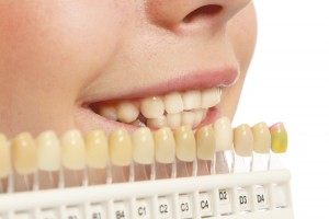 Top 5 Cosmetic Dental Procedures