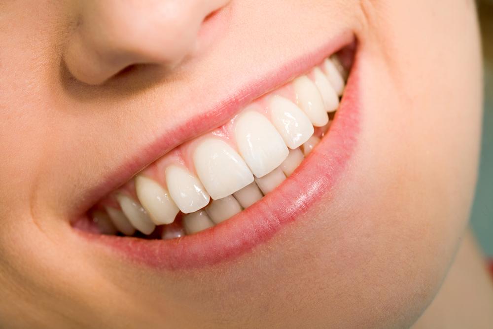 виниры на зубы преимущества