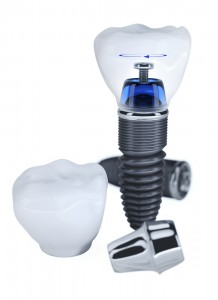 Maintaining Your Tooth Implant