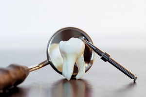 How Missing Teeth Affect Your Health