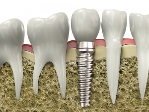 Tooth Implant Roseville