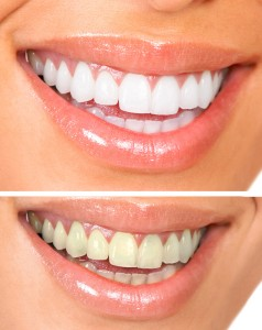 Common Teeth Whitening Services