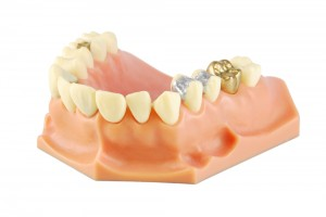 Different Types of Crowns - Roseville, CA