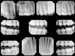 How much radiation do I get from a dental x-ray and how does it compare to other medical procedures?