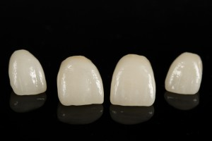 How Do Porcelain Veneers Differ From Dental Crowns?