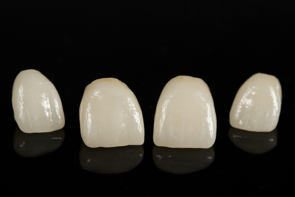 How Do Porcelain Veneers Differ From Dental Crowns
